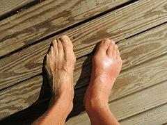 Reflex Sympathetic Dystrophy (RSD) or Complex Regional Pain Syndrome